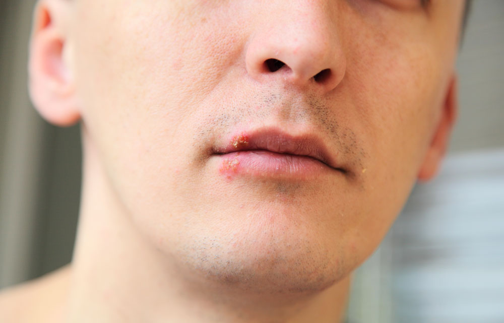 Herpes Simplex Virus - Forkølelsessår på læben.