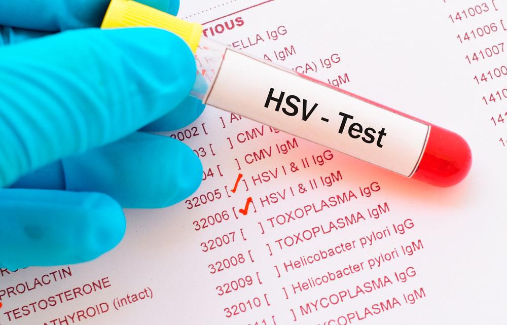 Herpes genitalis test og prøvesvar.