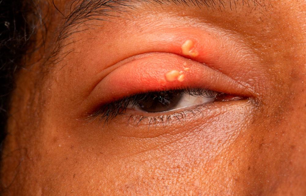 Herpes i øjet (herpes keratitis).