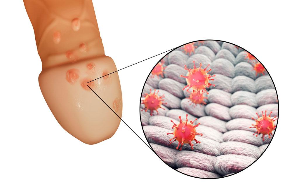 Herpes genitalis - udbrud af herpes på penis.