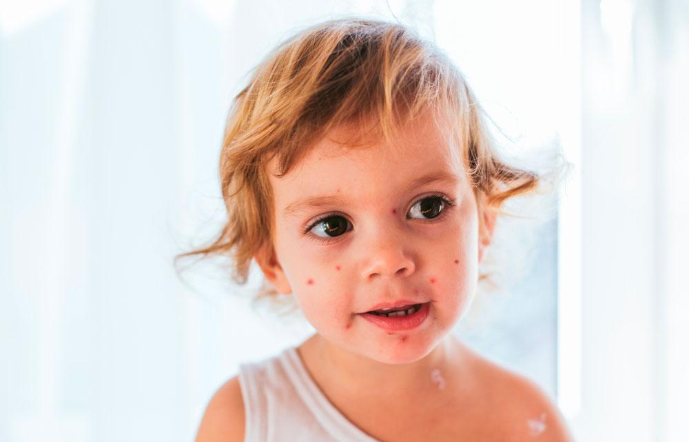 Skoldkopper på barn forårsaget af Herpes. Zoster virus