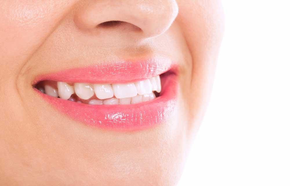 Kvinde med sund mund uden forkølelsessår på læberne